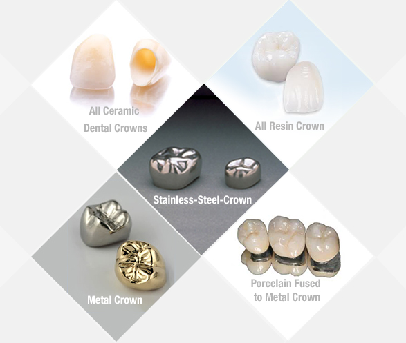 Dental Crown Bridges Healthysmilez