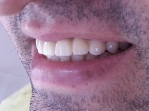 Dental Crowns & Bridge Case