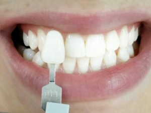 Teeth Whitening Cost in India