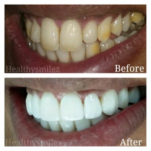 Veneers Treatment in New Delhi