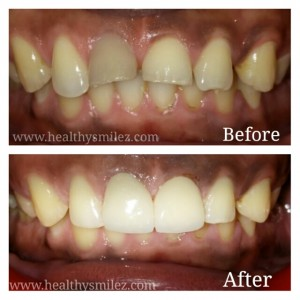 Cosmetic Smile Correction via Porcelain Crown