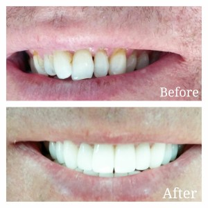 Smile Makeover via Porcelain Veneers