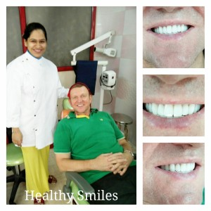 Smile Makeover via Porcelain Veneers_2