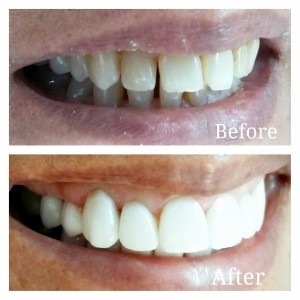 Porcelain Veneers affordable cost in india