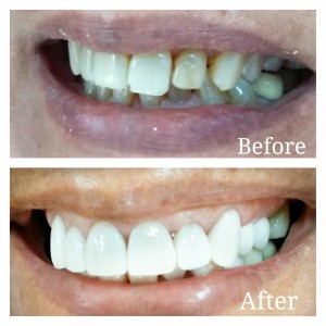 Porcelain Veneers Treatment in India