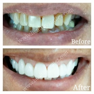Porcelain Veneers in india