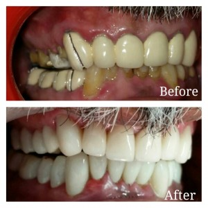 Porcelain Veneers cost in INDIA