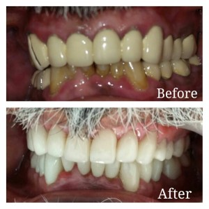 Porcelain Veneers used for Smile Designing
