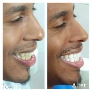 Porcelain Veneers India