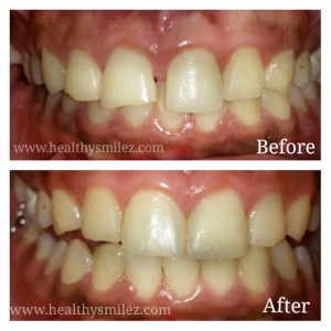 Case 14: Cosmetic Smile Makeover by Dental Bonding