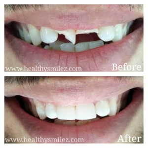 Cosmetic Smile Correction via Composite Bonding