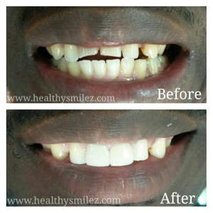 Cosmetic Smile Correctiona via Porcelain Crowns