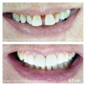 Cosmetic Smile Correction via Zirconia Crowns in Delhi