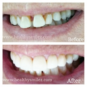 Cosmetic Smile Correction via Zirconia Crowns in INDIA