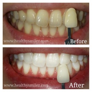 Laser Teeth Whitening in Delhi