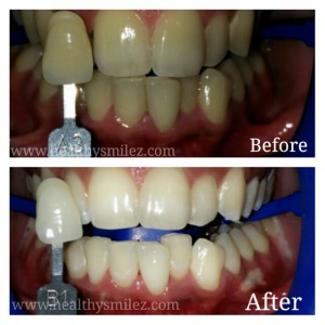 Laser Teeth Whitening in INDIA