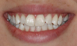 teeth_whitening_after