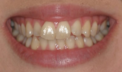 teeth_whitening_before